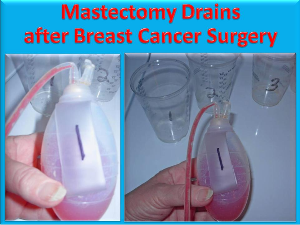 Breast cancer surgery video